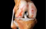 Артроз коленного сустава: симптомы и лечение