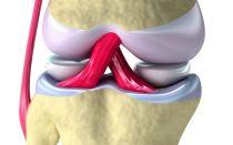 Доктор Евдокименко: лечение артроза коленного сустава (гимнастика)