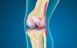 Пателлофеморальный артроз коленного сустава: лечение