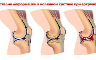 Как лечить деформирующий артроз коленного сустава