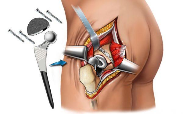 Лечение таза-бедренного сустава почему ноют плечевые суставы